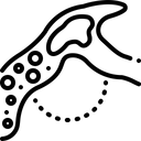 Embolism Cerebrum Artery Icon