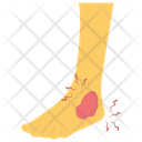 Ankle Injury Accident Concept Ankle Ache Icon
