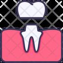 Dental Crown Treatment Icon