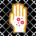 Dermatitis Rash Hands Icon