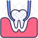 Extraction Tooth Icon