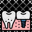 Implant Premolar Odontology Icon