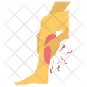 Leg Fractured Icon