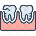 Molar Silhouette Treatment Orthodontics Icon