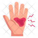 Hand Hurt Palm Bleeding Palm Injury Icon