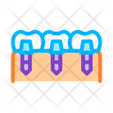 Dental Teeth Implants Icon