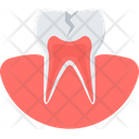 Tooth Cavity Dental Icon