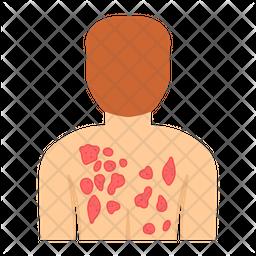 Body Rashes Icon