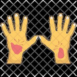 Hand Bleeding Icon