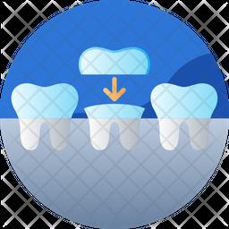 Teeth implant Icon